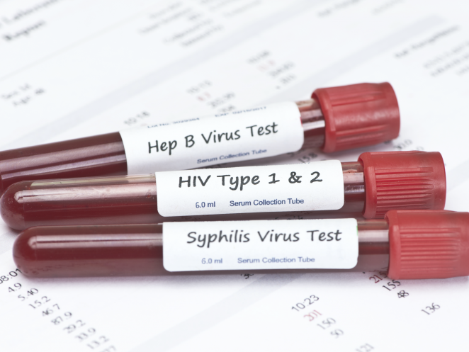 The University Medical Center of Southern Nevada widens HIV testing in Las Vegas